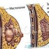 Біль і ущільнення в грудях жінки. Можливі причини