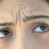 Як зробити ефективну маску від мімічних зморшок на лобі в домашніх умовах