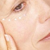 Як доглядати за шкірою навколо очей після 30 в домашніх умовах народними засобами