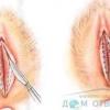 Малі статеві губи зморщені і якщо їх розтягнути видно якісь білі пухирці