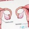 Причини зменшення тривалості менструацій.