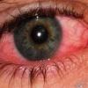 Захворювання очей. Чим лікувати?